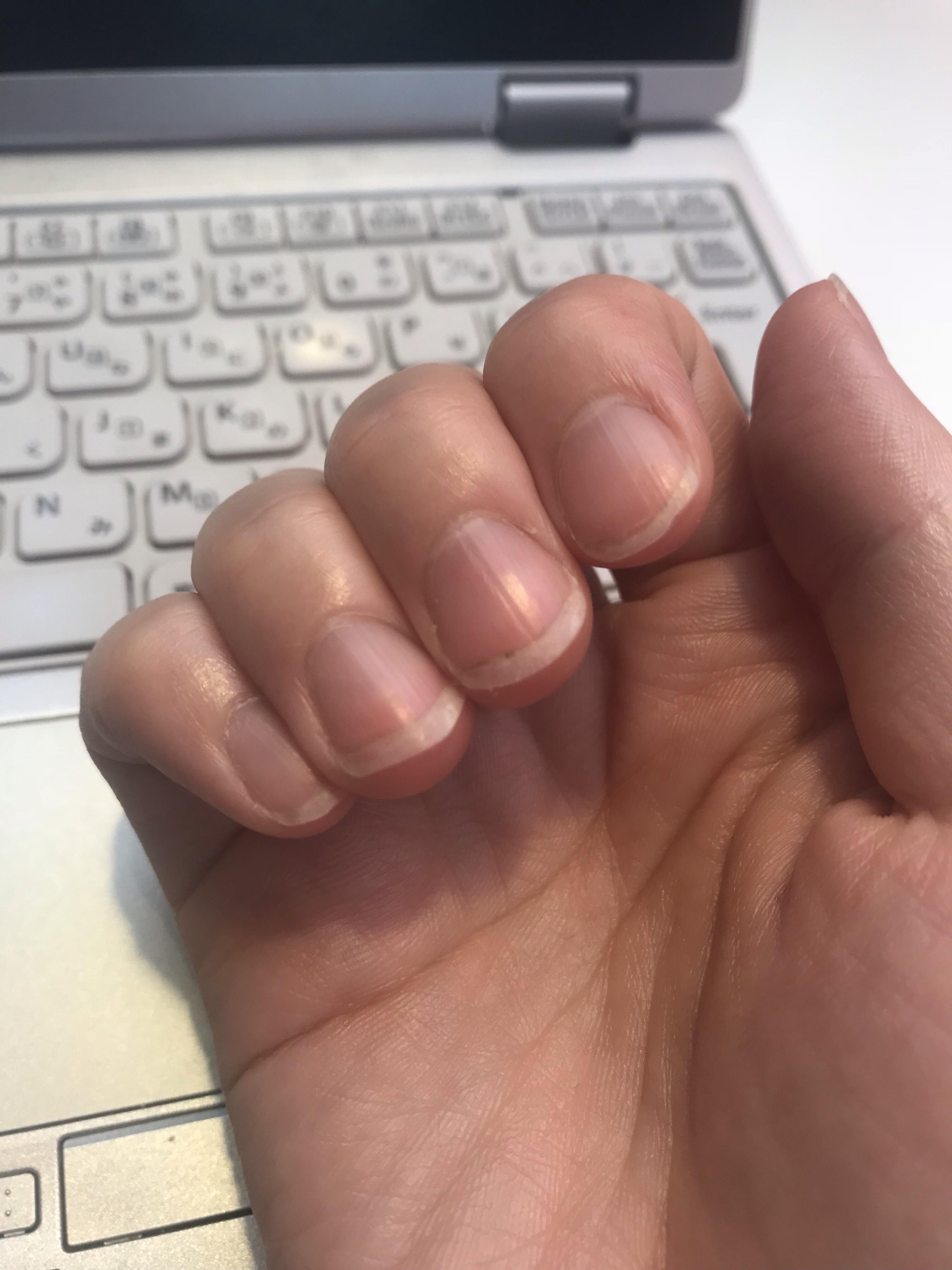 2018/9/28深爪矯正を決意したときの写真