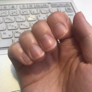 管理人の深爪画像(深爪矯正前)