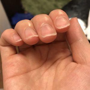 爪のやすりかけに失敗した管理人の写真