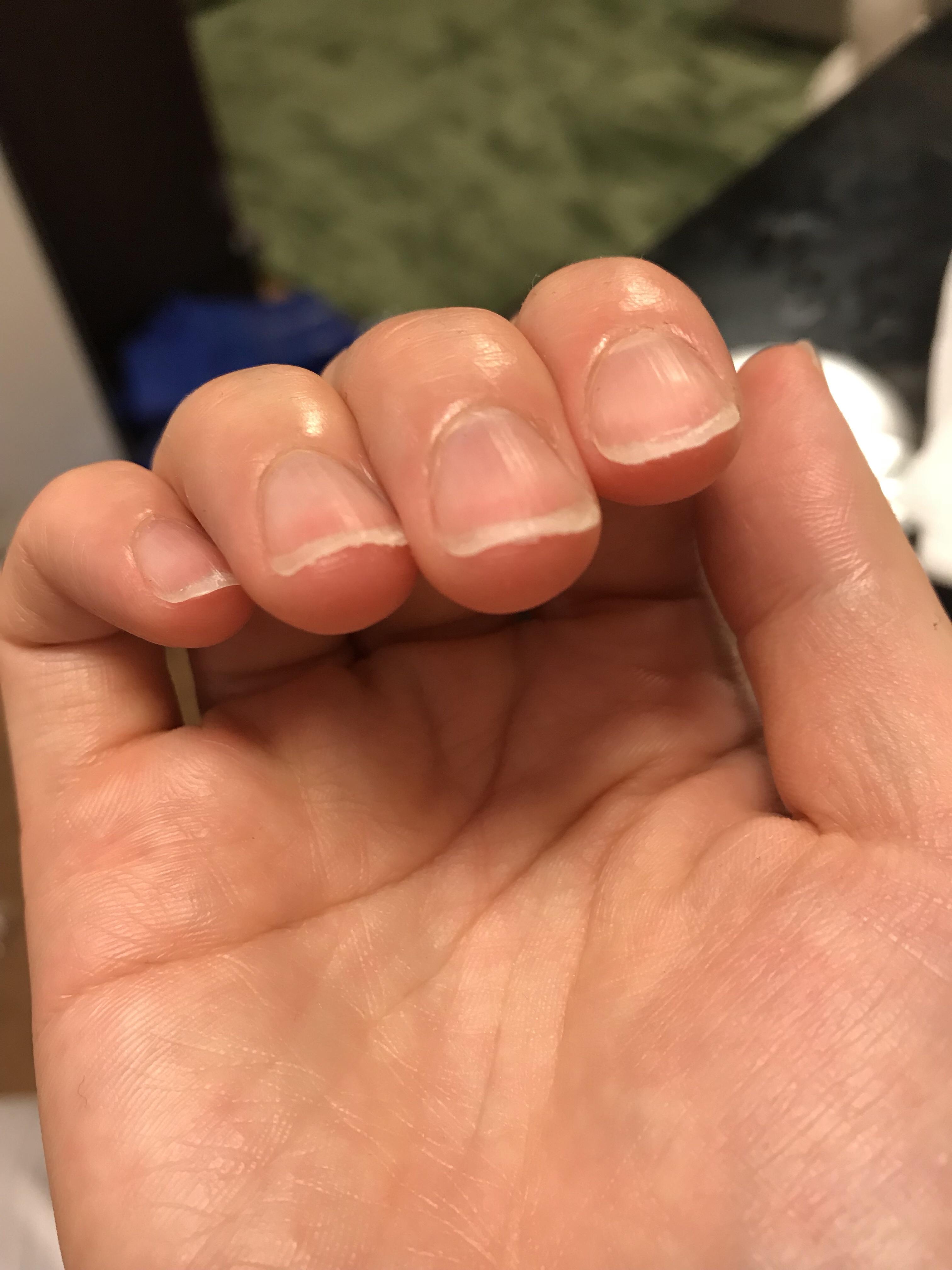 薬指や中指の爪断面がボロボロになっているのが分かりますでしょうか(爪の先が2~3枚に分離した感じ)?ヤスリを往復させちゃうとこうなります…orzという写真