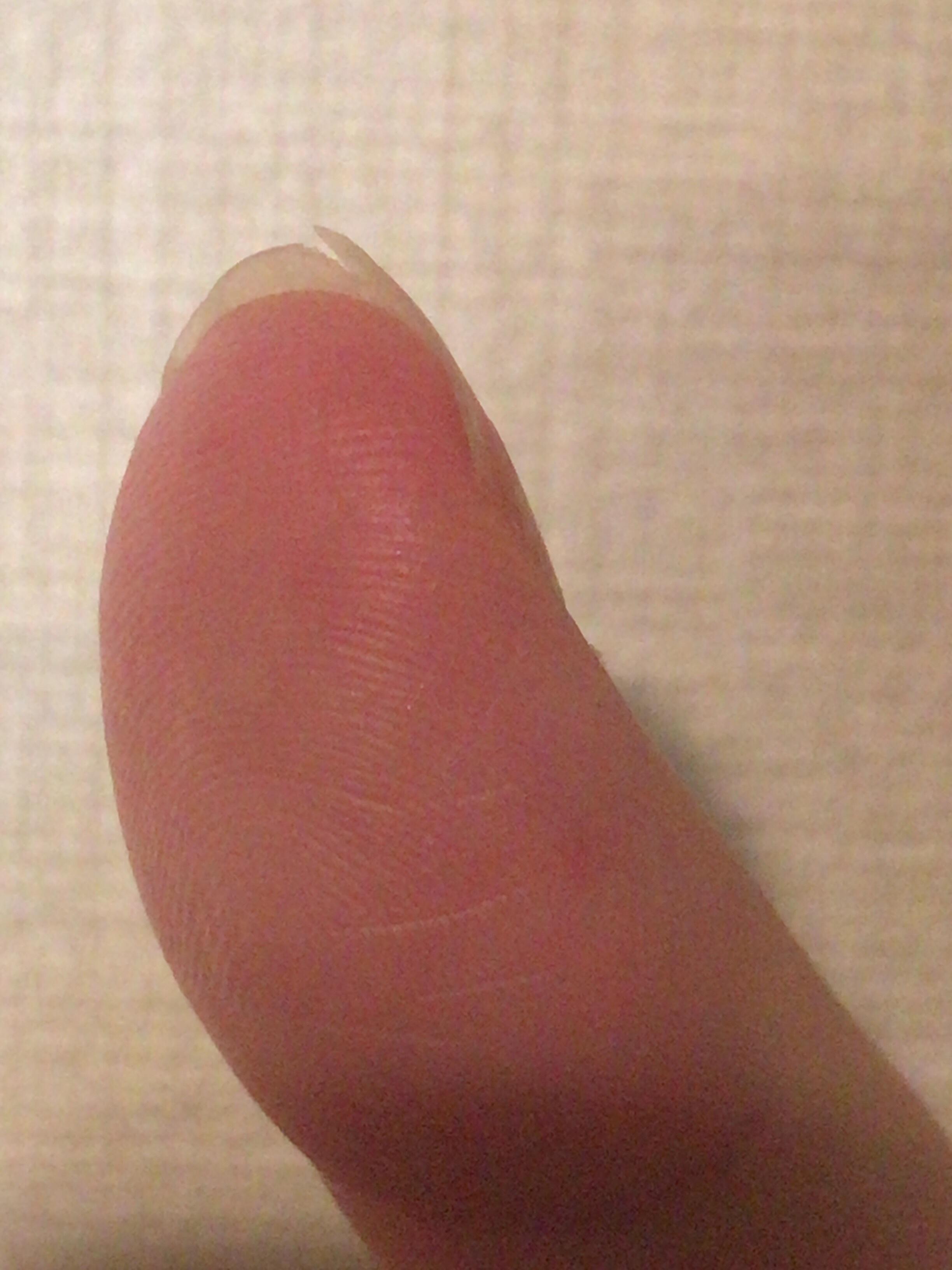 開始1週間で爪が割れた写真