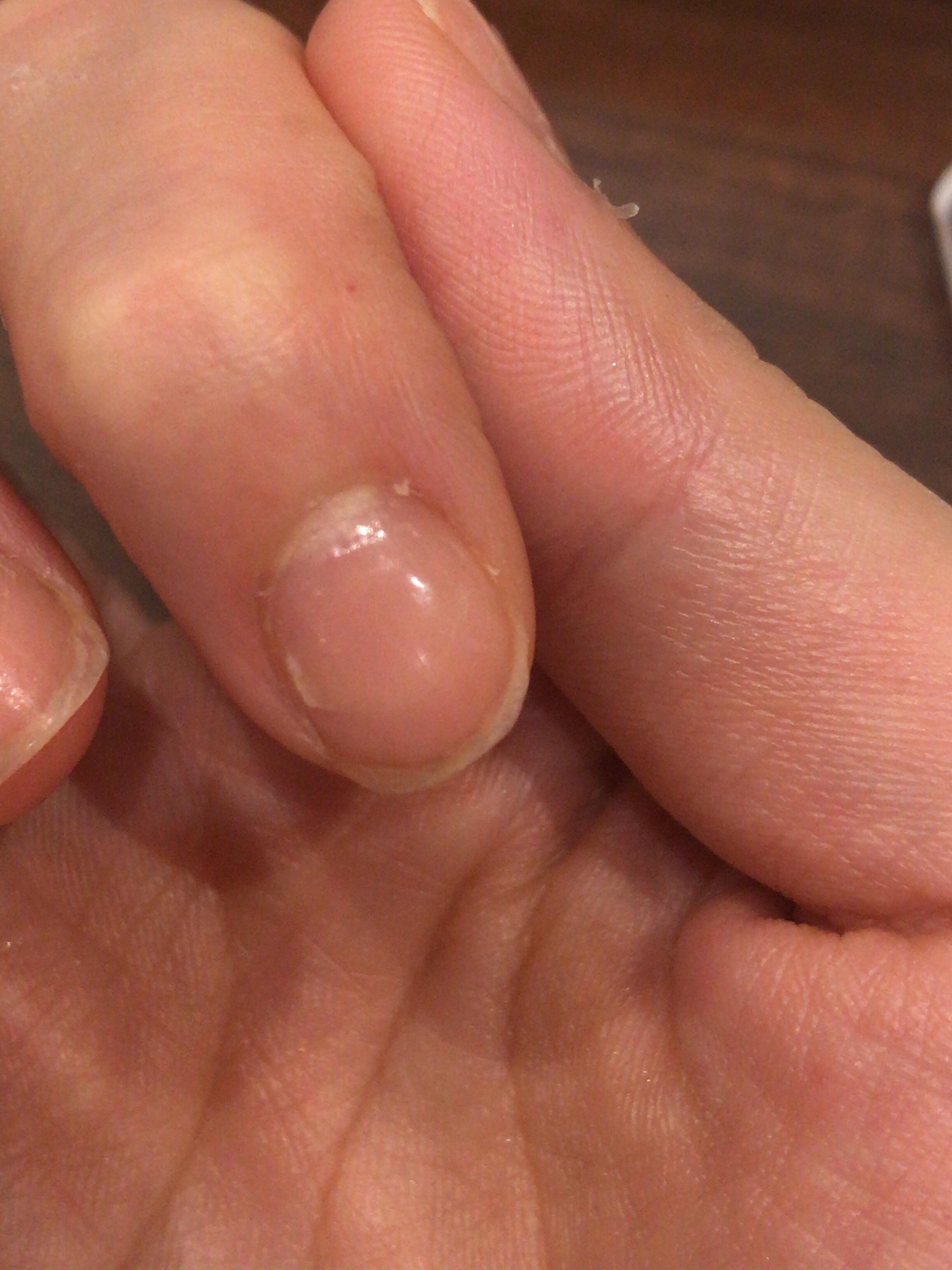管理人の場合は、よく使う両手の人差し指の爪がどうしても短くなりやすく(途中で割れたりして)、なんとなくスクエアオフ状態からのスタートでした。という写真