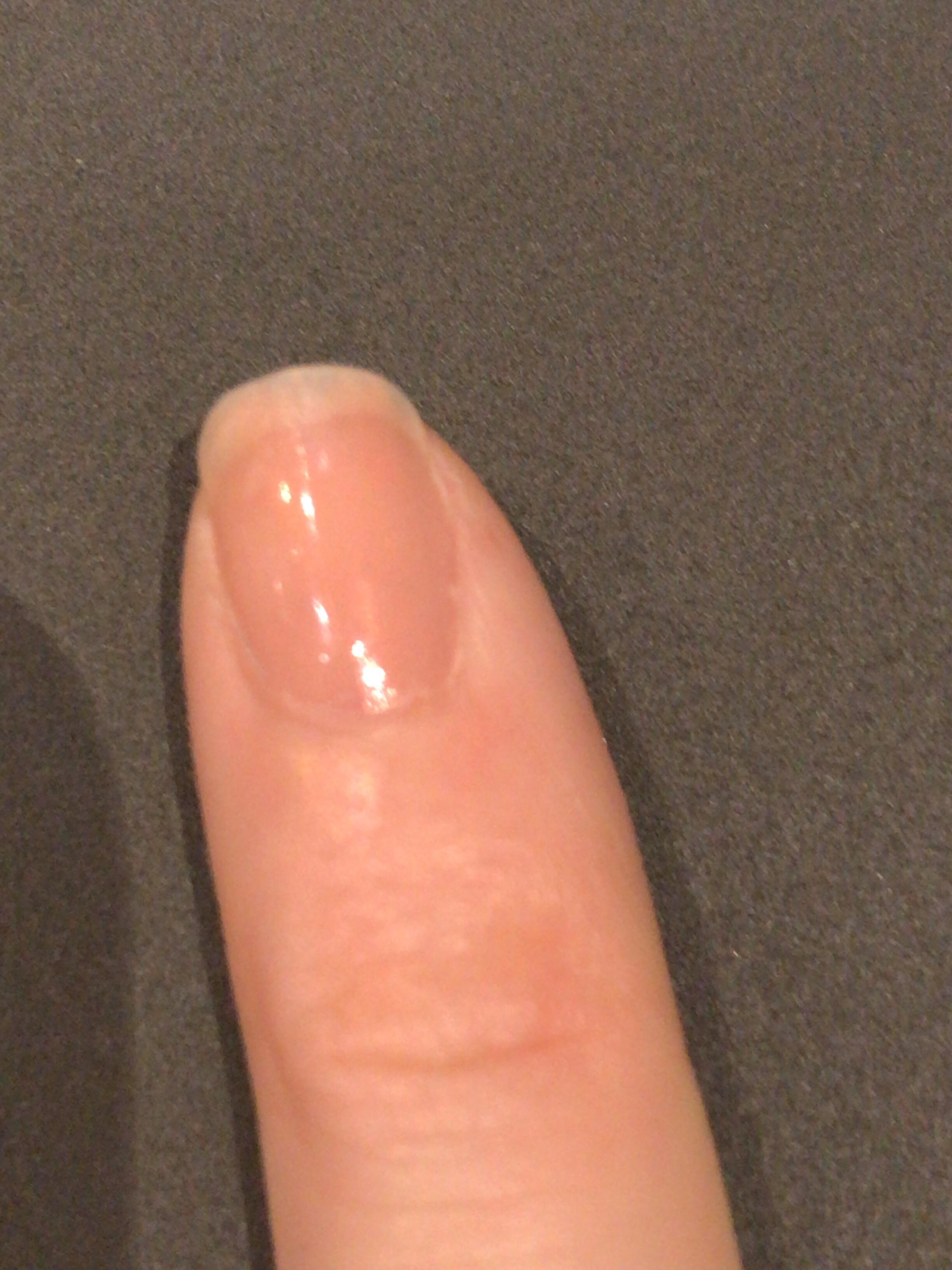 ちなみに、小指だけは当初から少し整えるだけでザ・スクエアオフ。小指を参考に他の指も整えていきます。という写真