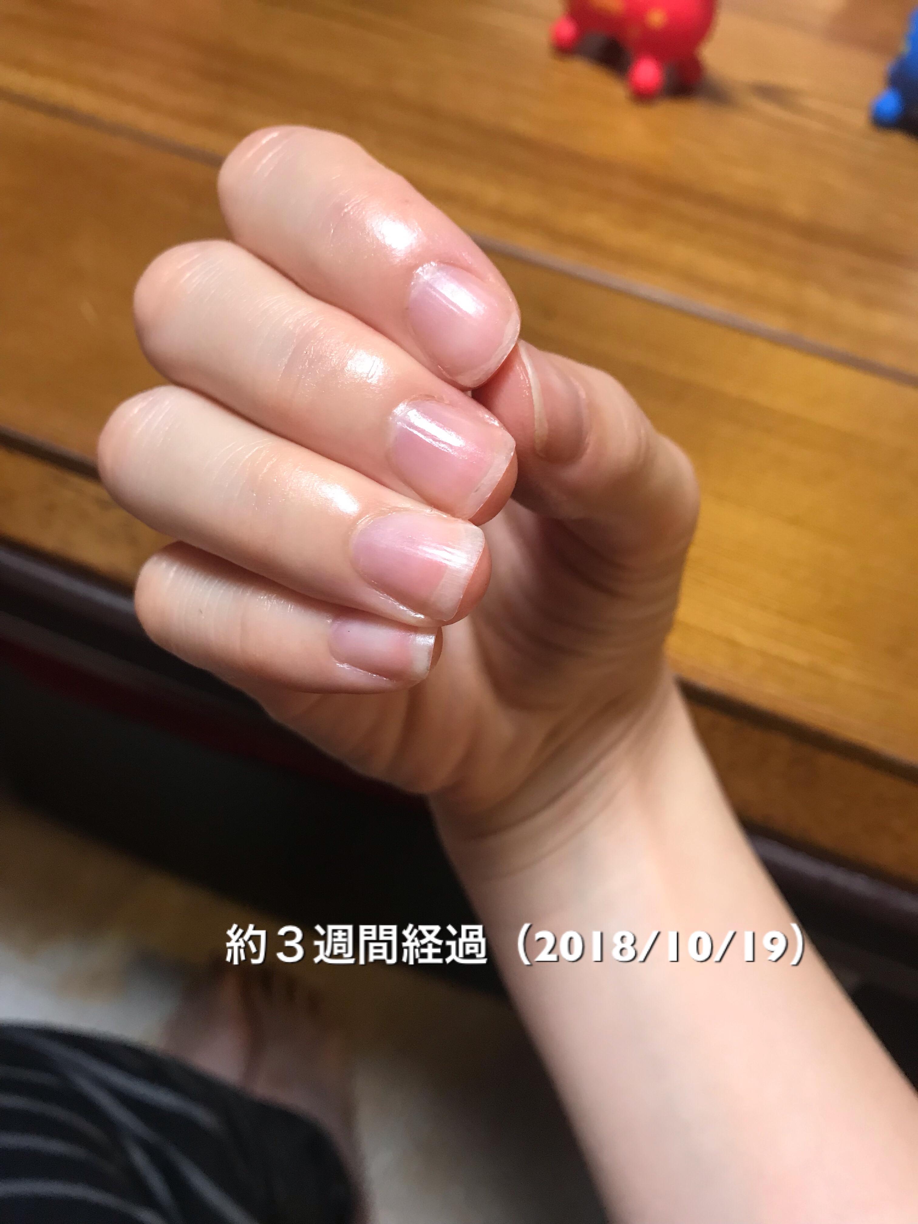 マニキュアなしの素爪です。爪の割れ欠け防止のために、保湿に取り組んできた成果か、光沢が感じられるようになりました。また、爪の形も心なしかスッと伸び始めてきた気が…。という写真