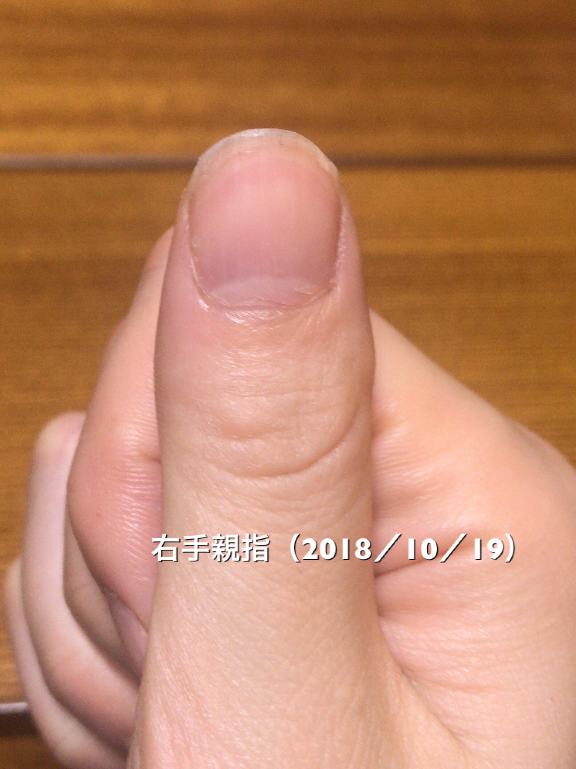 爪の白い部分とピンクの部分の境目に、ハイポニキウムが伸びた部分(1ミリほどの幅の白っぽいピンク色の部分)があるのがお分かり頂けますでしょうか?ちょっとずつですが、ネイルベッドが縦に伸びてきています。という写真