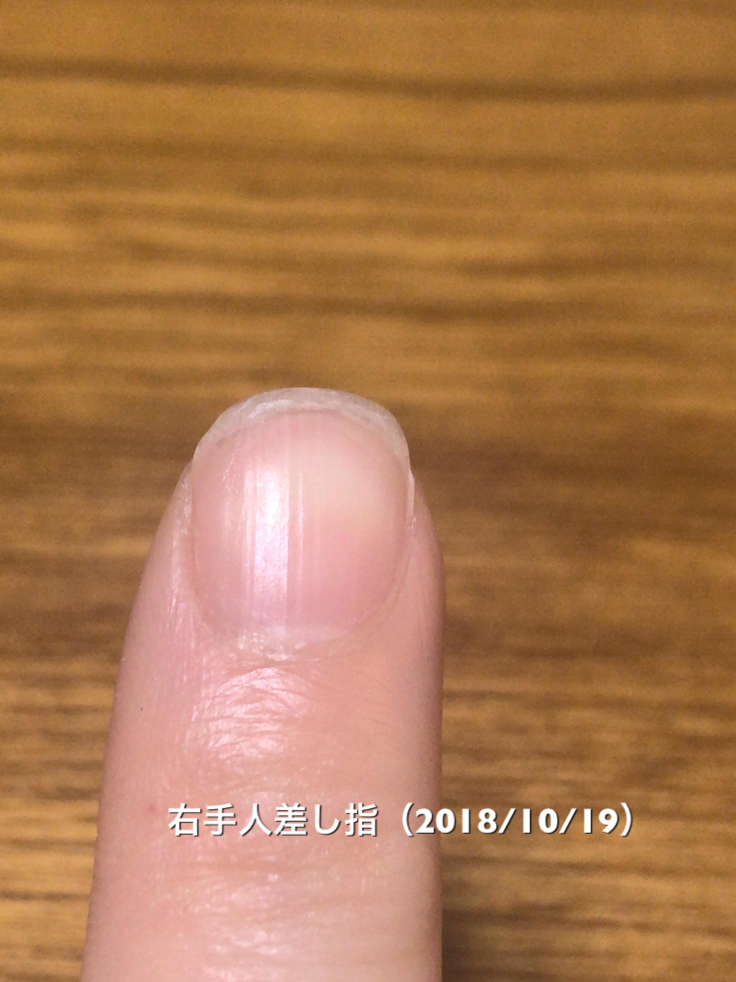 右手人差し指は、矯正開始1週間で、爪先が割れるというアクシデントを経験。切って整えたので、他より短めです(元々、よく使う人差し指は、他より爪がボロボロになりやすいです…(^^;)。真ん丸だったのが、すこーし縦に伸びだした兆候があるような…。今後に期待です。という写真