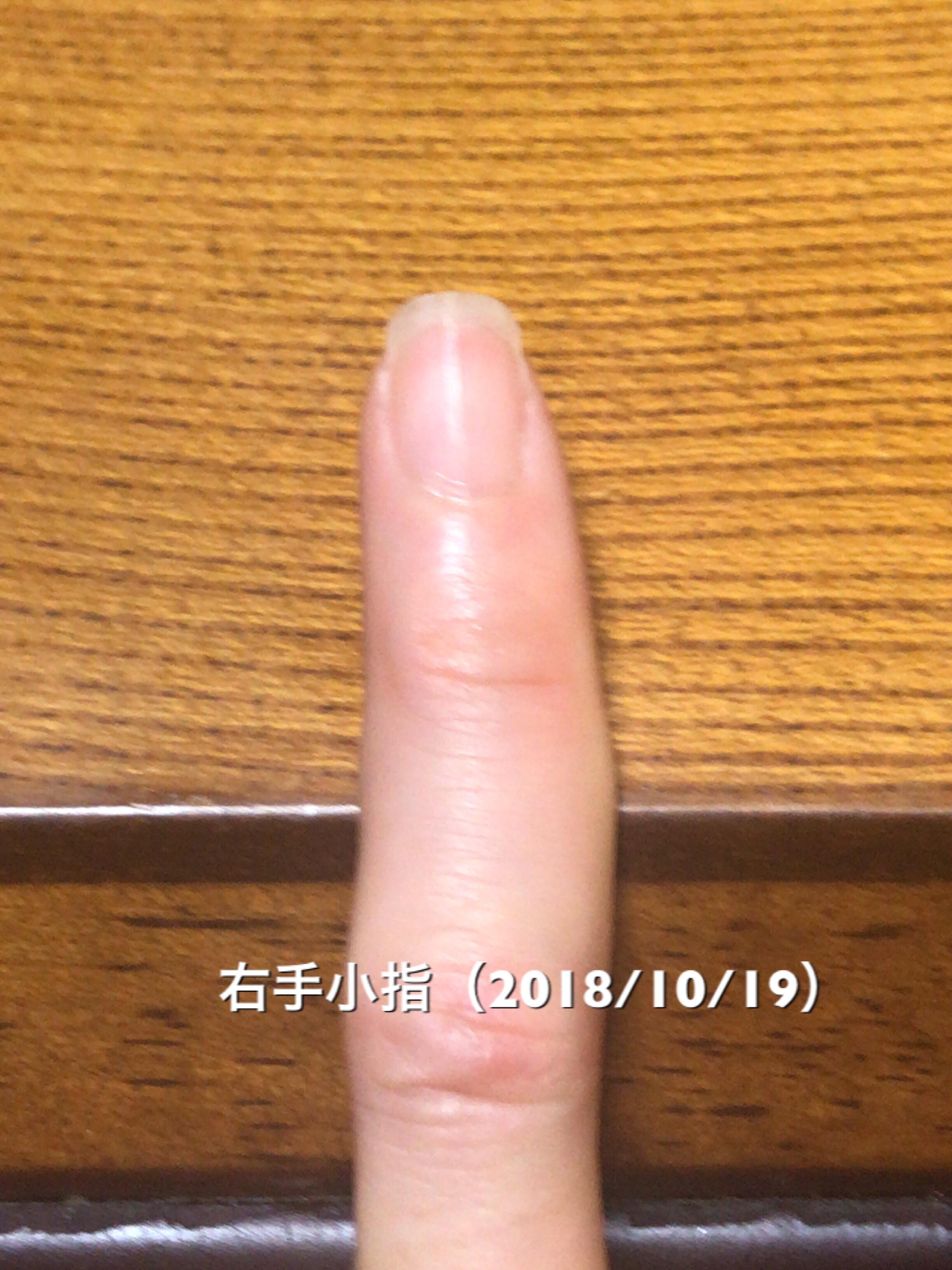 小指はかなり理想的な縦長になりつつあります。うまくうつせていませんが、ハイポニキウムも順調な成長。小指、薬指あたりをモデルケースに他の指の爪の形成を頑張っていきたいところです。という写真
