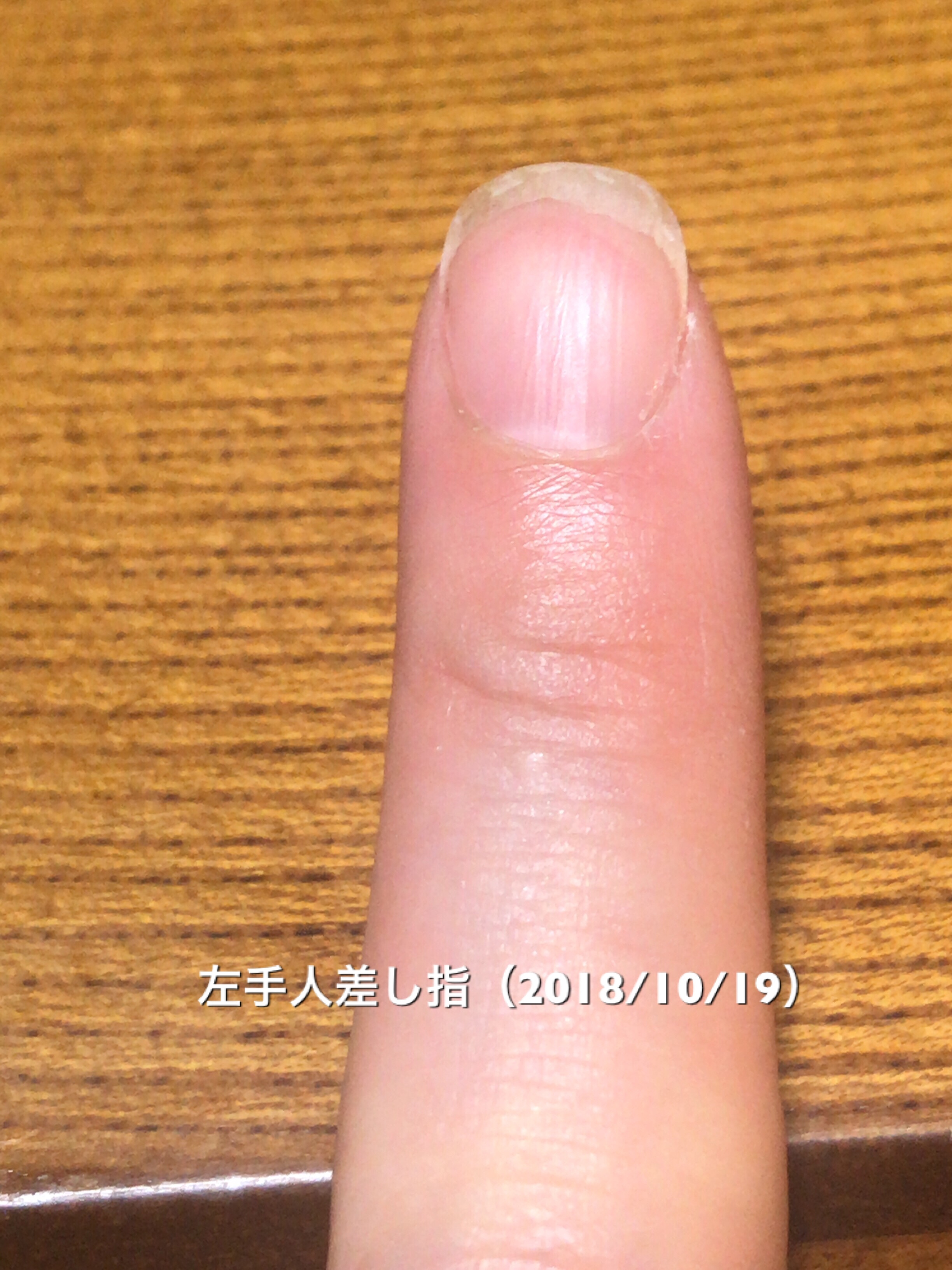 人差し指は、両方とも爪先の二枚爪や痛みがひどいですね…。まだまだ爪先を使った作業を無意識にしてしまっていたり、丈夫な爪が作れていないことに原因がありそうです。いろいろ課題はありありですが、ハイポニキウムはしっかり成長しています。ハイポニキウムは裏切らない!頑張るぞ!という写真