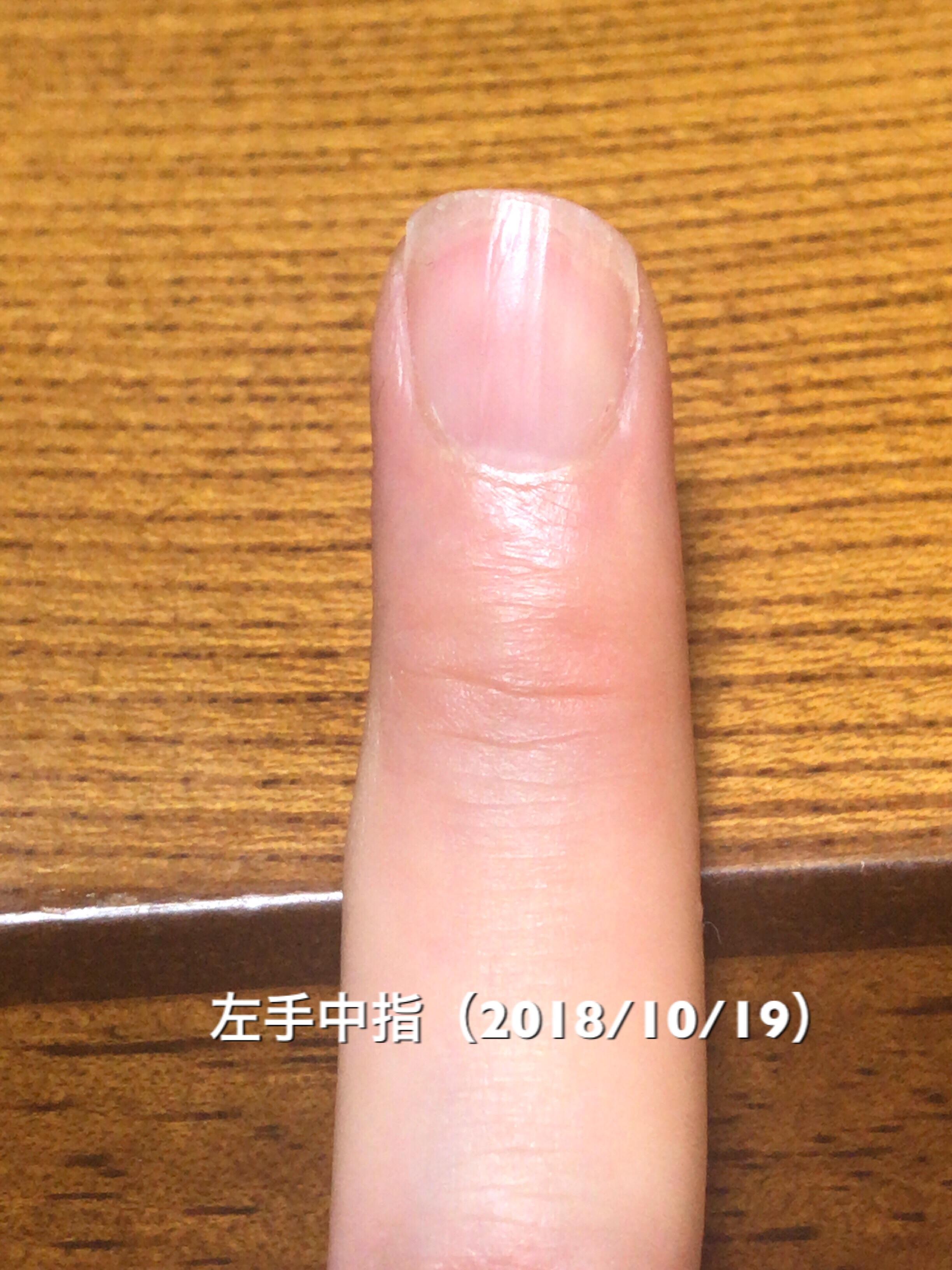 左手薬指は、中央部分のハイポニキウムの成長が著しく、サイド部分がそれに続くような仕上がりに。乾燥具合とかそういった影響でしょうか?左右差ありますが、サイドラインも着々と形成。均等に形を整えていきたいところです。という写真