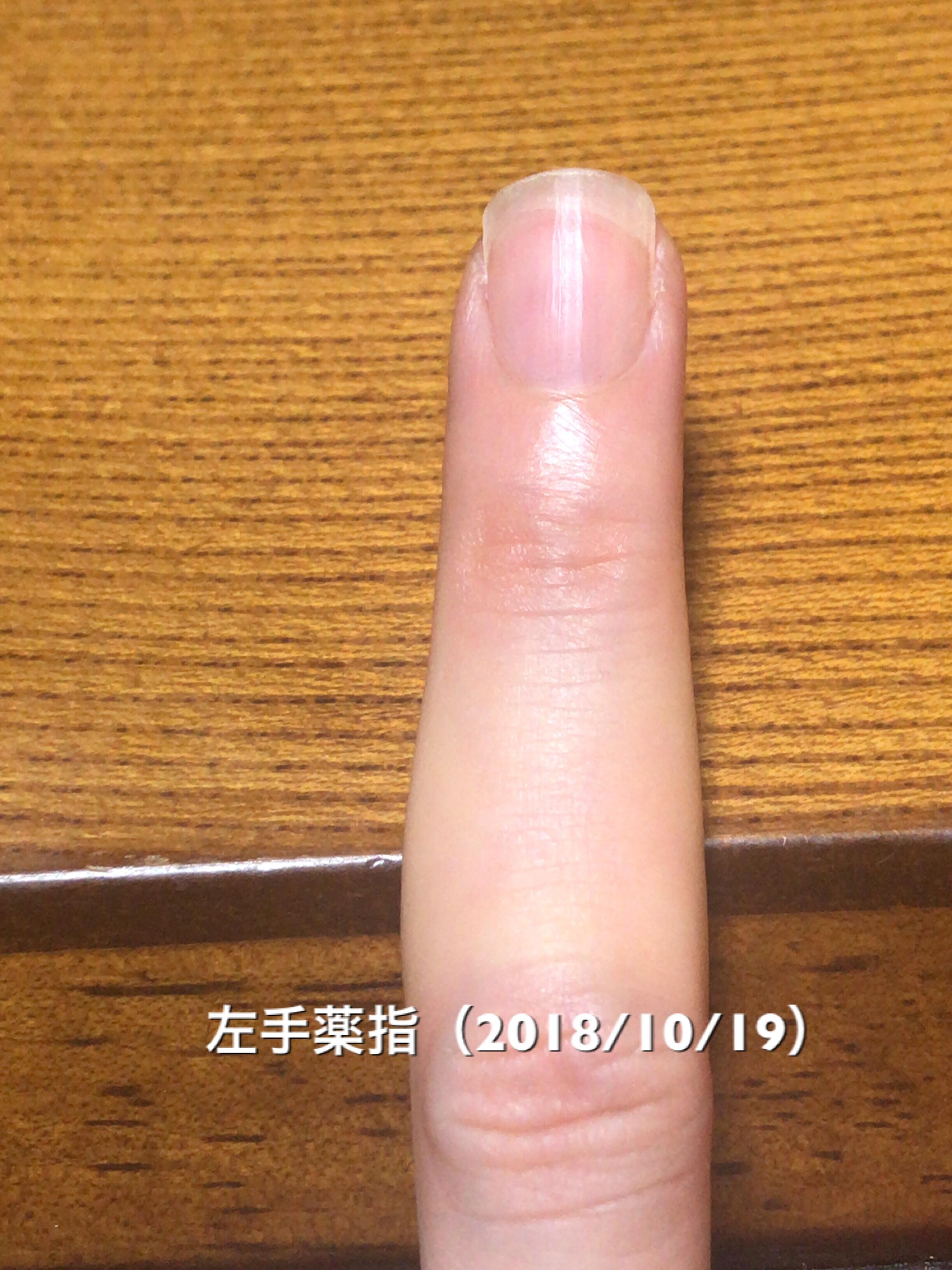 ザ・スクエアオフという形に近づいてきて嬉しい!強いていうなら、爪全体に対して、白い部分が多めなのが少し気になるところです。保湿を頑張って、ネイルベッド部分を増やしていきたいと思います。という写真