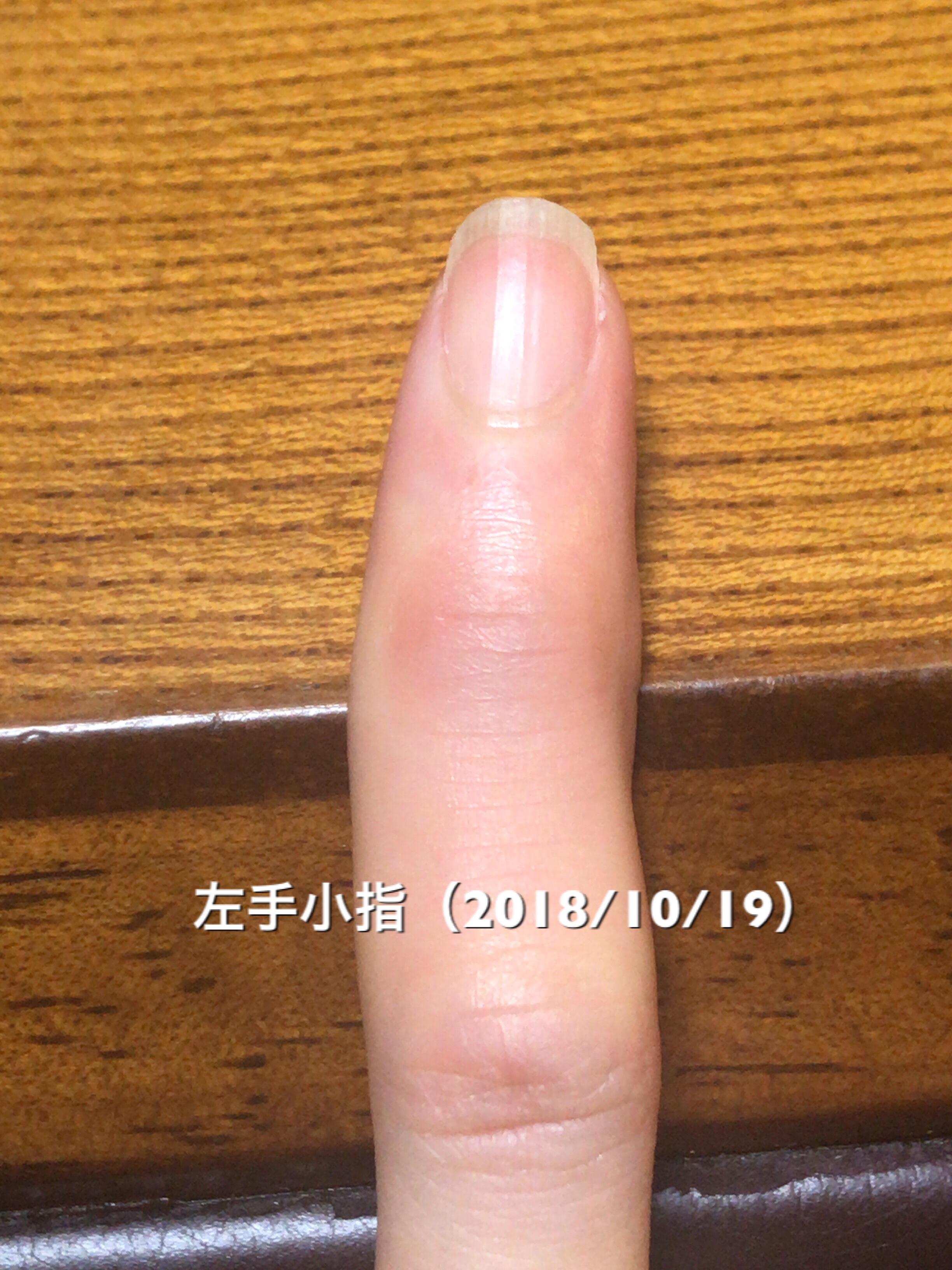 左手小指も順調。小指は結構綺麗に伸びてきているので、余裕があれば甘皮オフ等爪周りの手入れもやってみたいところ。という写真