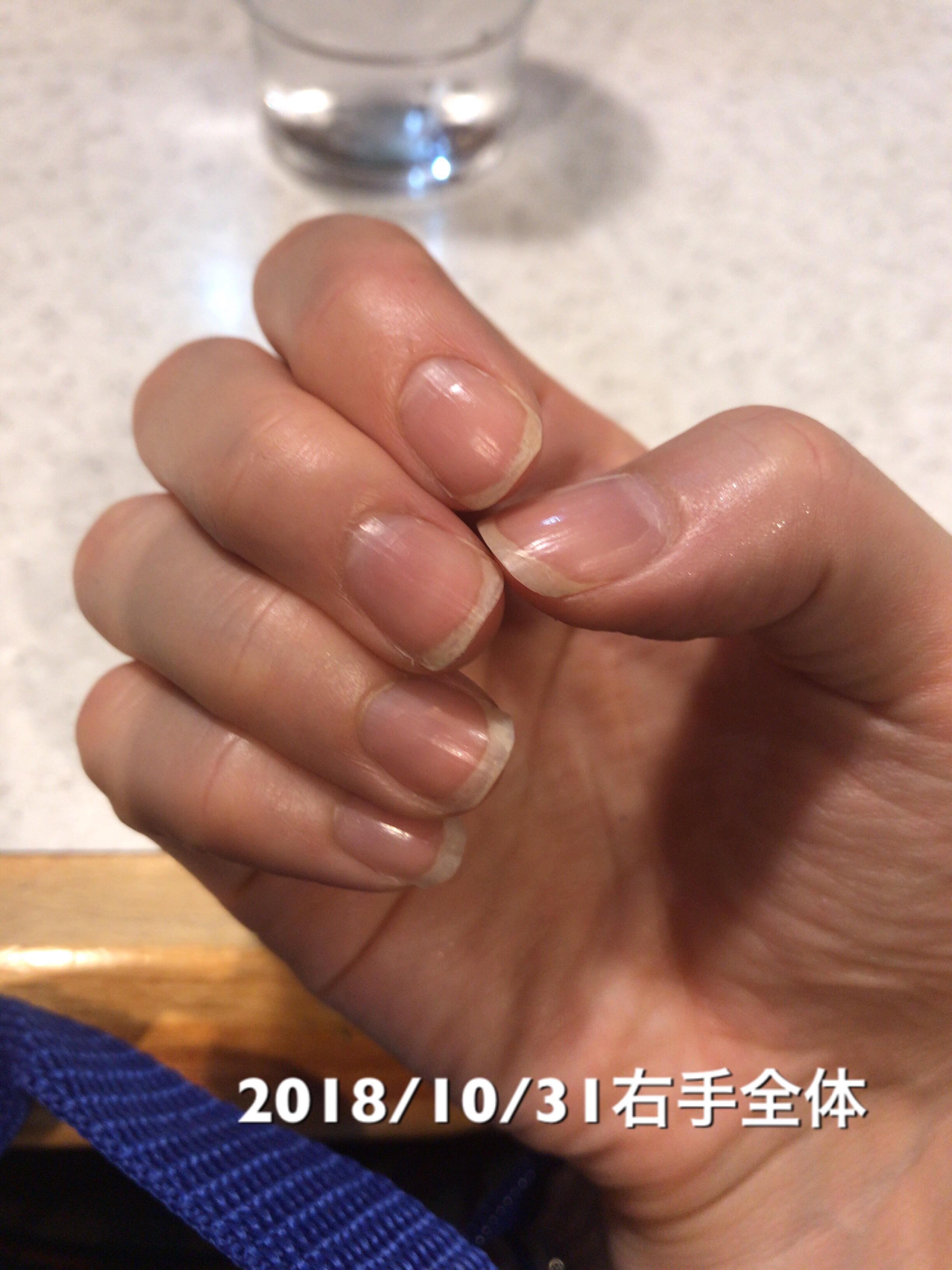 心なしか、いや!確かに、中指の丸っこさが取れて、少しずつですが〇→長方形に近づきつつあります。中指以外の指も縦にすこーしだけ伸びています。