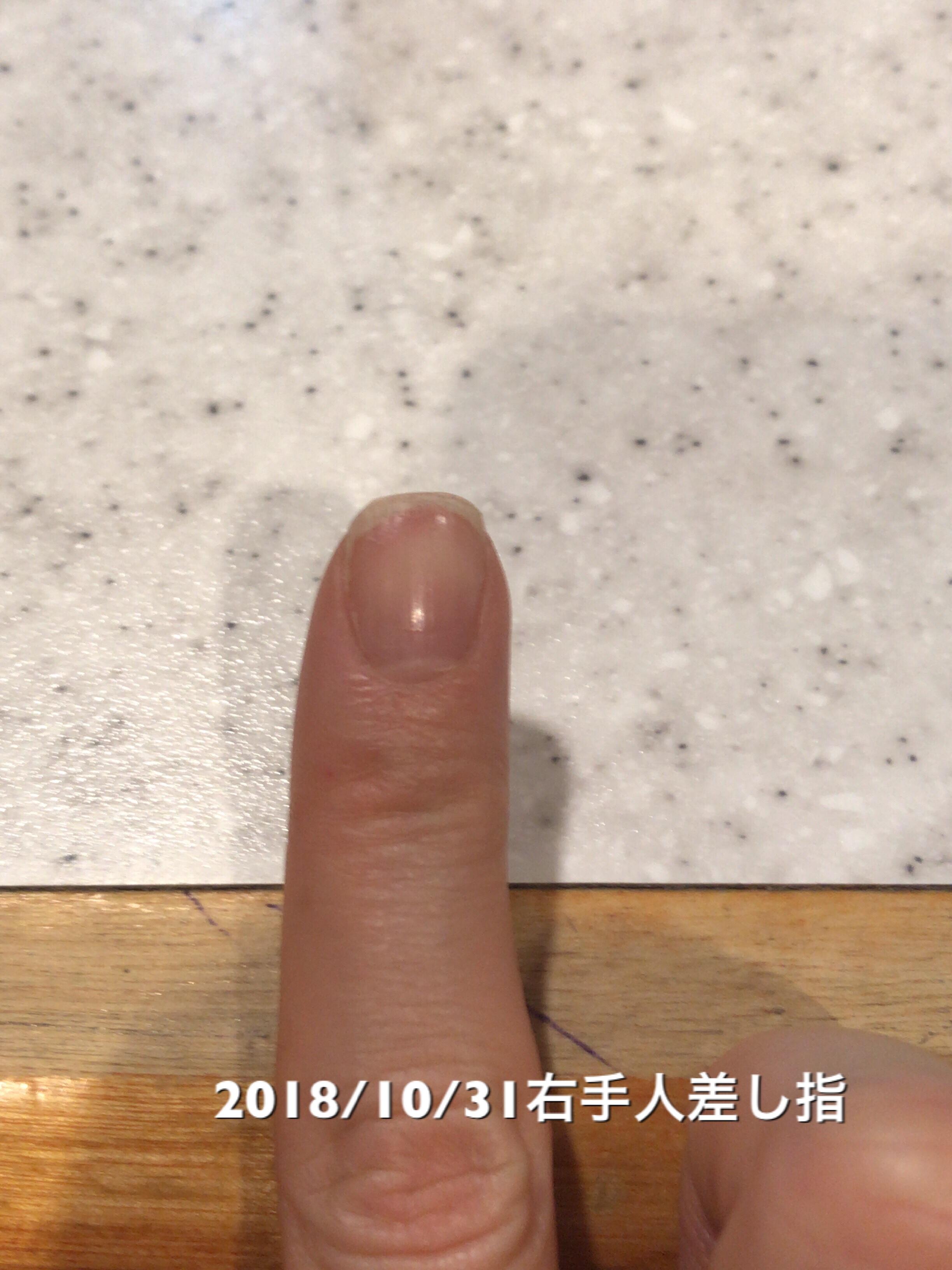 右手人差し指は、10日前と比べてネイルベッドの全長が1mm成長。よく使うのですぐ先が割れたりトラブル続きですが、めげずに頑張りたいところです。