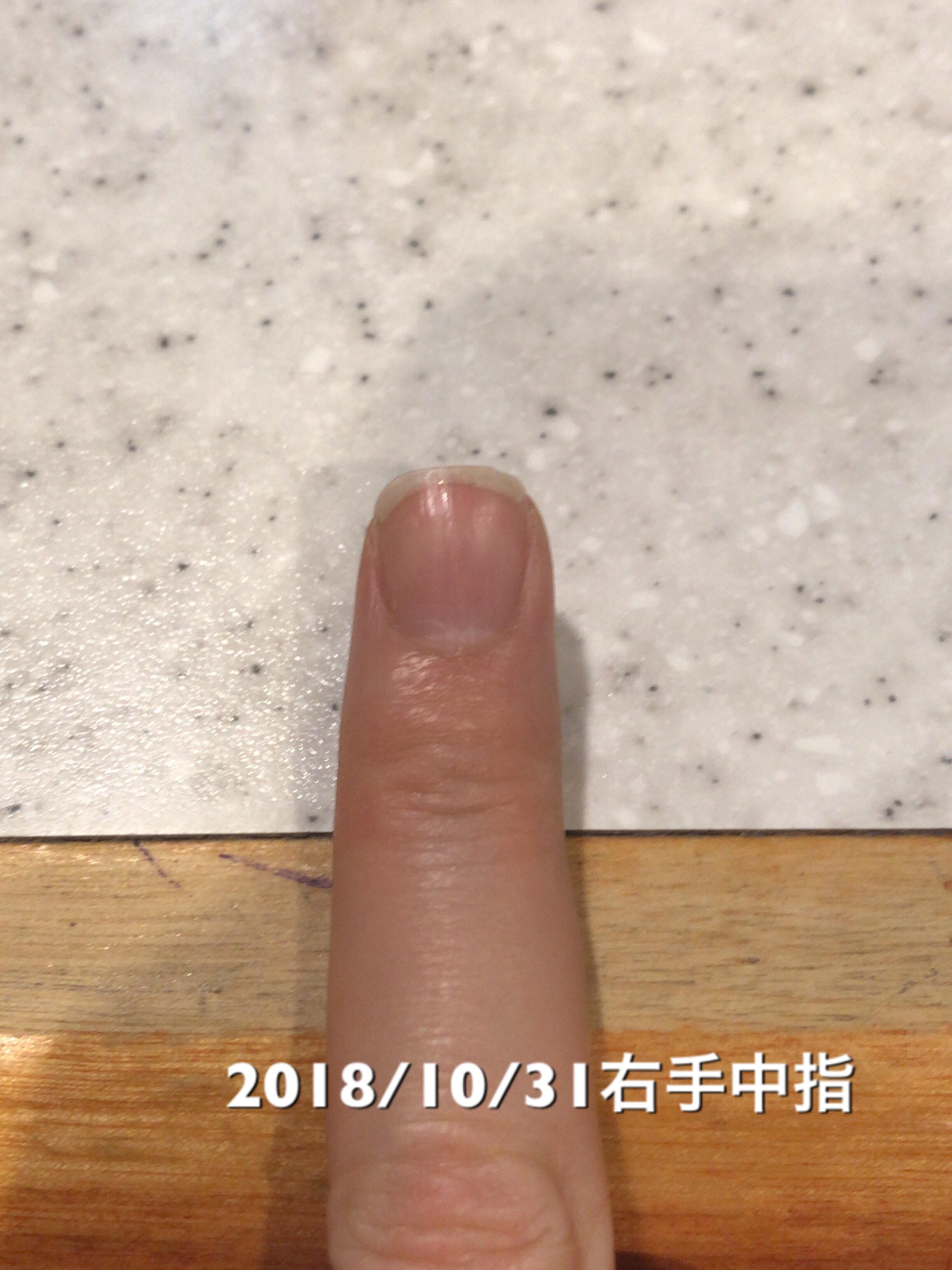 右手中指は、10日前との比較で、ネイルベッドが2mmの成長。