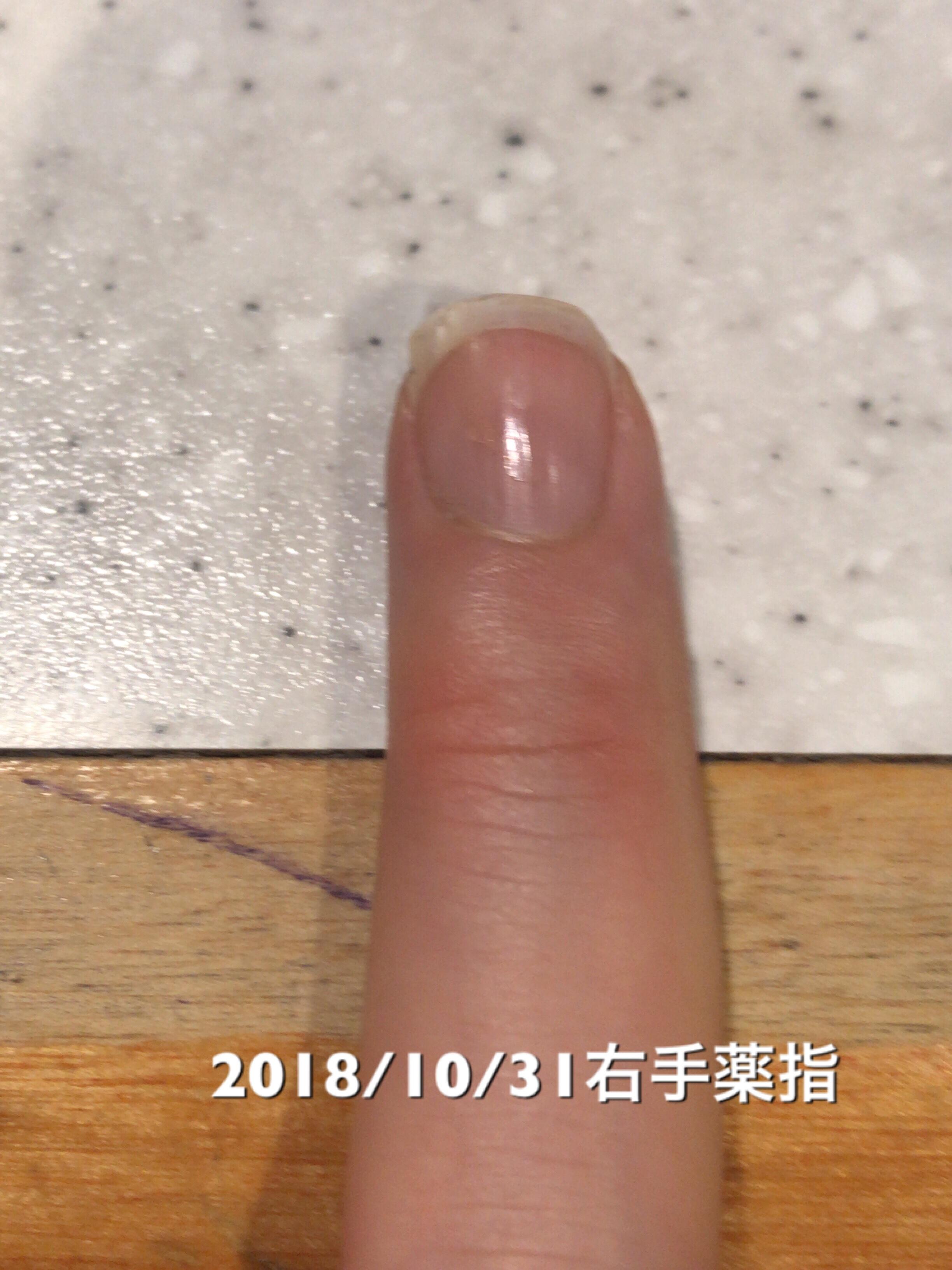 右手薬指は今回は変化なし。