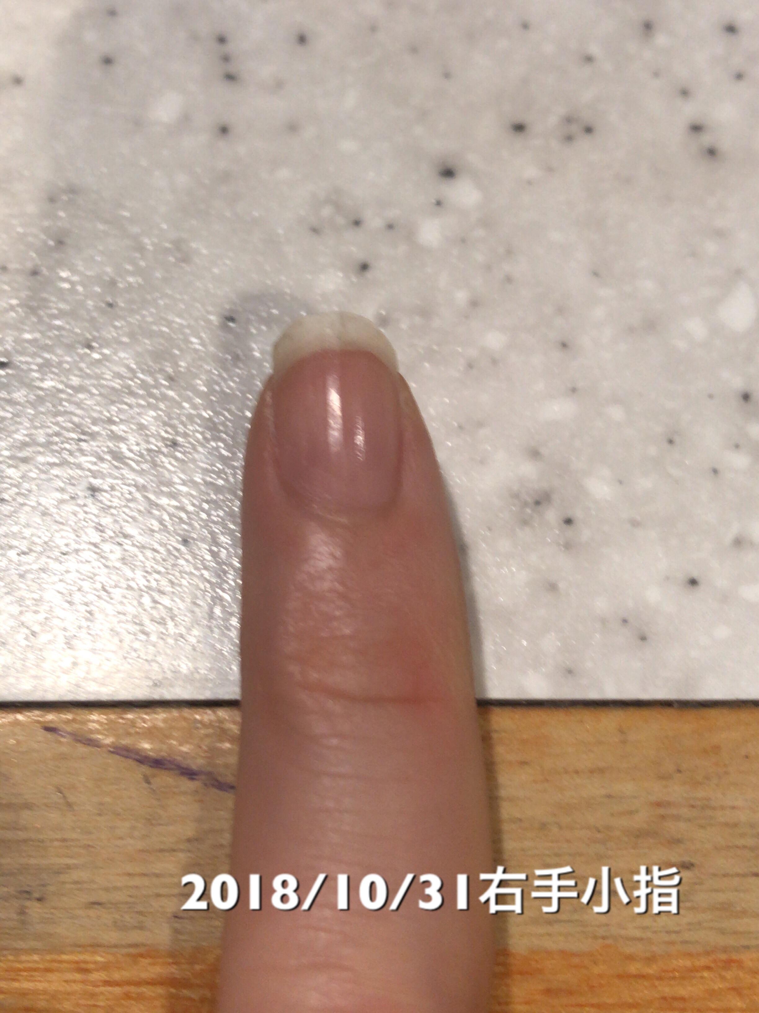 小指もネイルベッドが1mm成長。小指はネイルベッドの長さも形も満足できる形に近づきつつある印象。という写真
