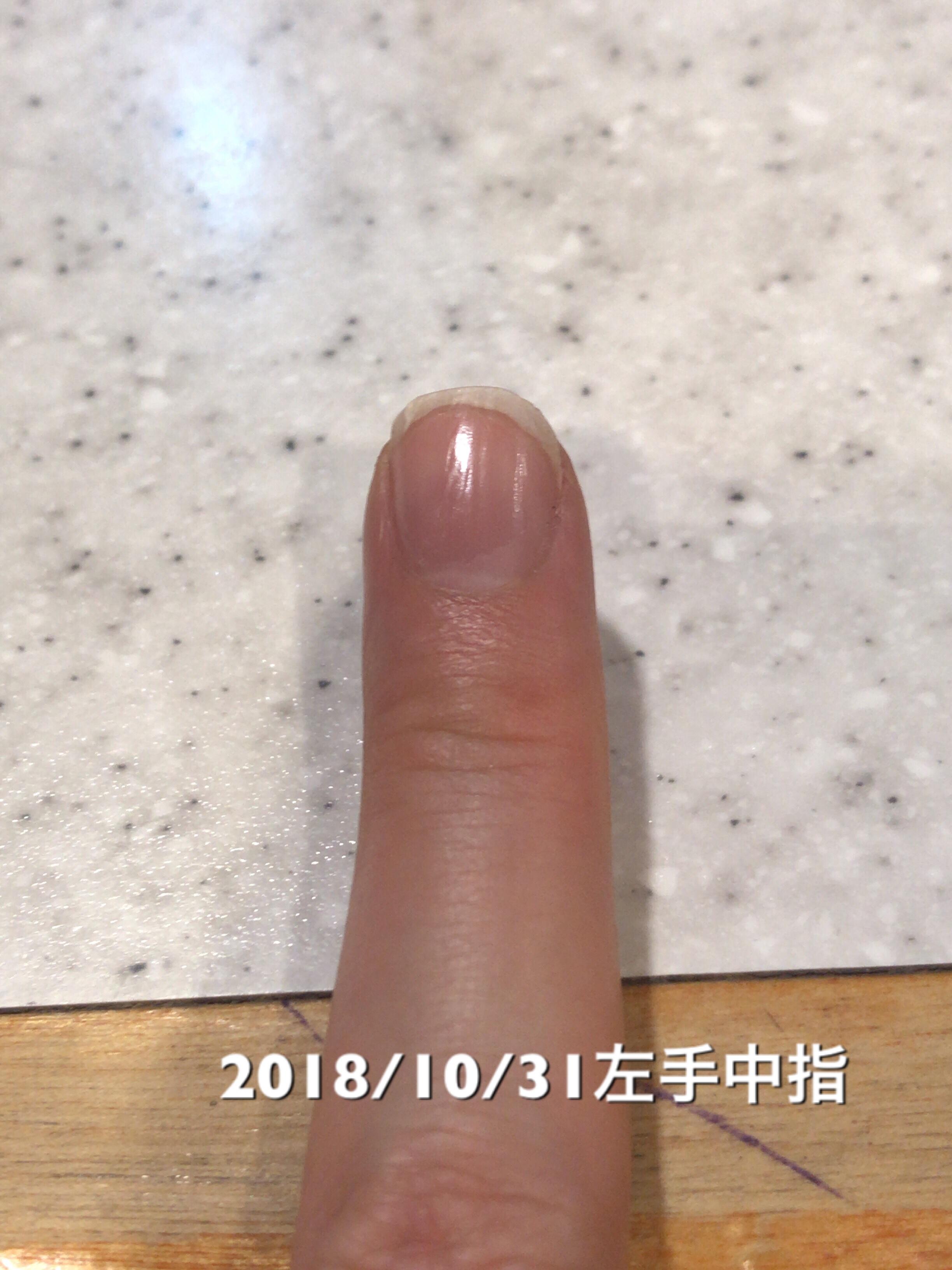 左手中指も少しだけ成長。右側のサイドラインがかなり短くなってしまっているので、そこを修正していきたいなぁ。という写真