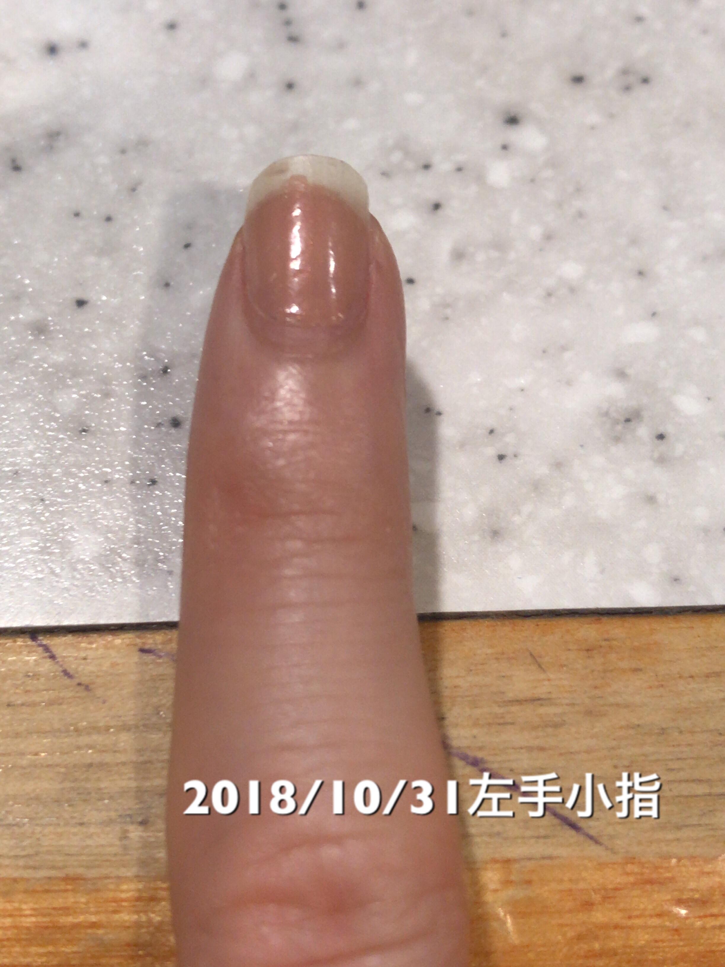 小指は数値面では10日前と変化なしですが、サイドラインがより一層くっきりしてきたと感じます。マニキュアの落とし残しが映ってしまってますが、マニキュアを塗るとほっそりした爪になってちょっと嬉しいです。という写真